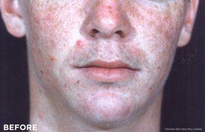 Schöne Haut mit Vitamin A