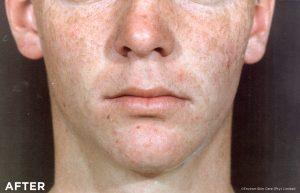 Gesunde Haut mit Vitamin A