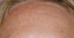 Stirn nach dem Medical Needling
