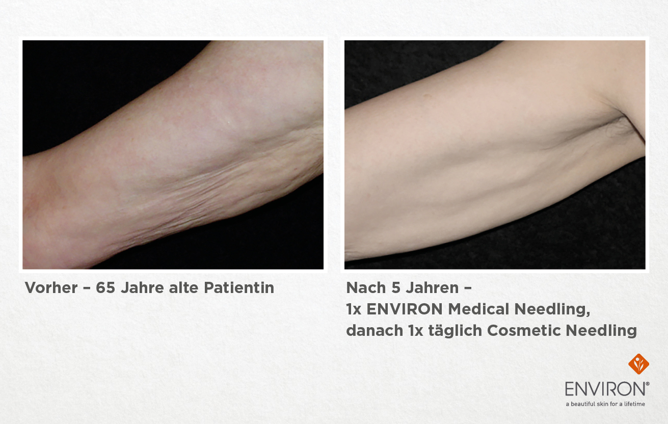 Needling für die Haut