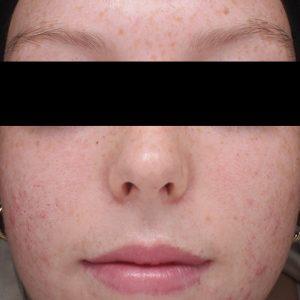 Nachher - Skin Clear Biome