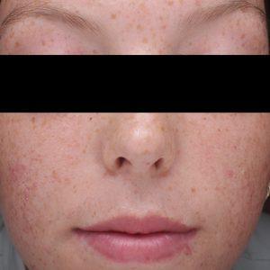 Vorher - Skin Clear Biome